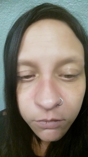 Facial Swelling and Rash