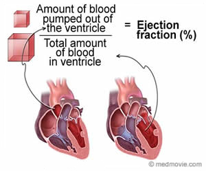 Ejection-Fraction