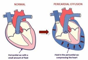 pericardial_effusion