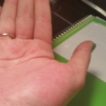 Itchy palm, blistering