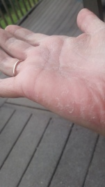 Peeling on palm following rash