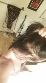 Continued Hair Loss