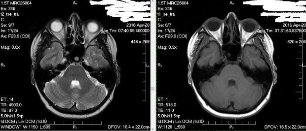 mri-of-the-head-and-brain-2